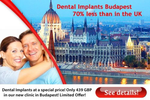 Dental implants Budapest